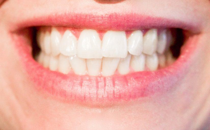 Dzisiejsza technologia używana w salonach stomatologii estetycznej być może spowodować, że odbierzemy piękny uśmieszek.